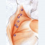 Long deep strokes, combined with trigger point therapy, and slow shoulder stretches.